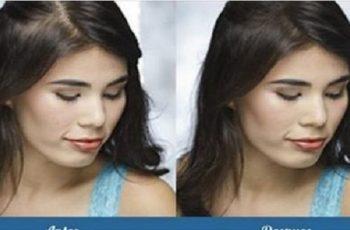 queda de cabelos