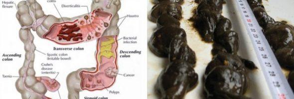 limpeza do intestino