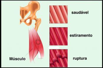 Distensão e Estiramento Muscular