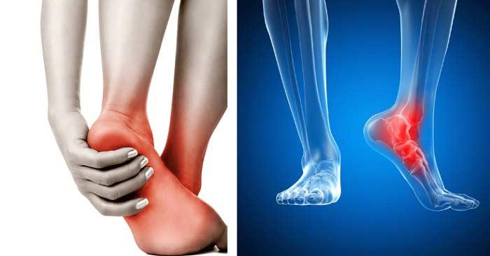 doencas-ortopedicas